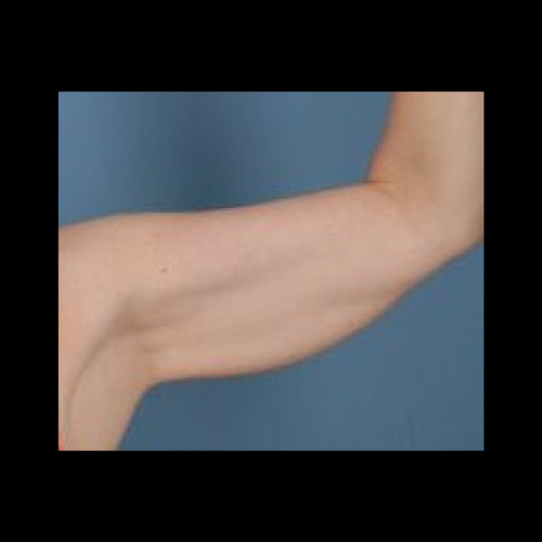 Saggy arm has many causes
